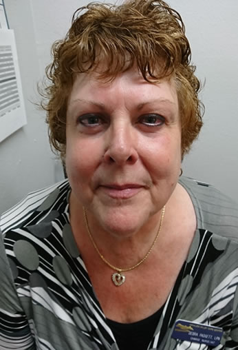 Debra Padgett